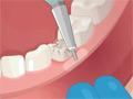 Operace: Zubní ordinace